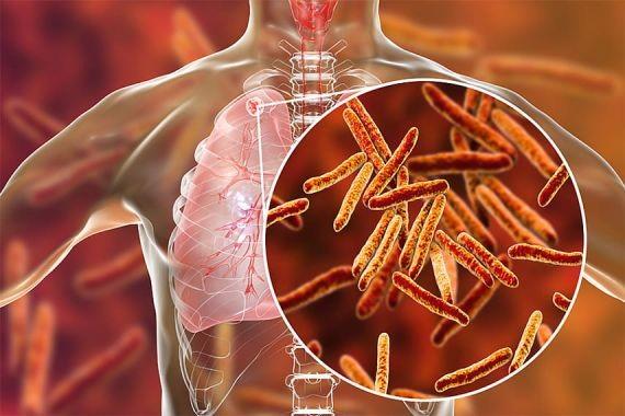 В Иркутске у девятиклассника диагностировали открытую форму туберкулеза