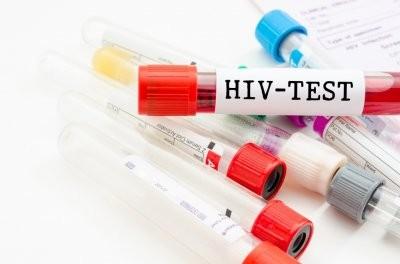 Зарубежные медики выяснили, почему ВИЧ становится устойчивым к лекарствам