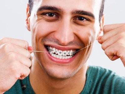 Зарубежные медики назвали продукты, которые нельзя есть тем, кто носит брекеты