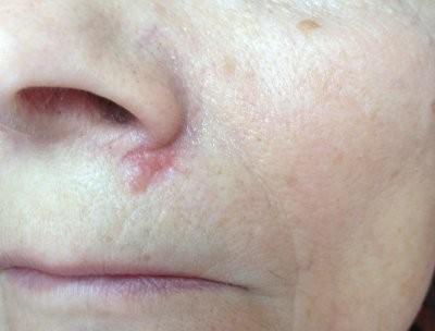 Врач-онколог рассказала, как самостоятельно распознать базалиому кожи лица