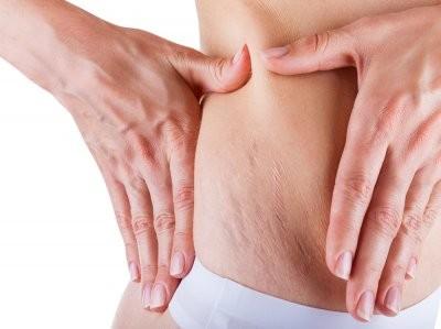 Врач рассказала на какие заболевания эндокринной системы может указывать кожа