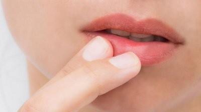 Названы ранние симптомы рака губы