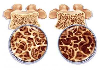 Зарубежные медики назвали 5 вредных для костей привычек