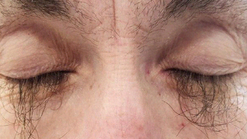 Препарат от рака вызвал у женщины аномальный рост ресниц
