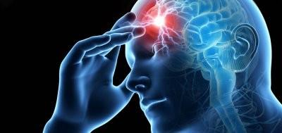 Зарубежные специалисты рассказали, как снизить риск инсульта