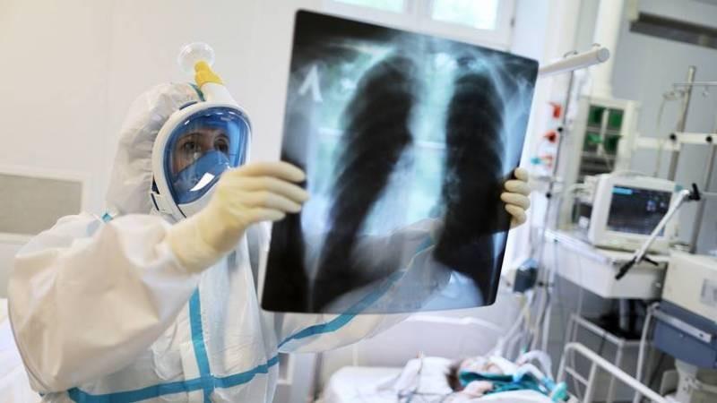 Россиян предупредили о возможной угрозе вспышки туберкулеза