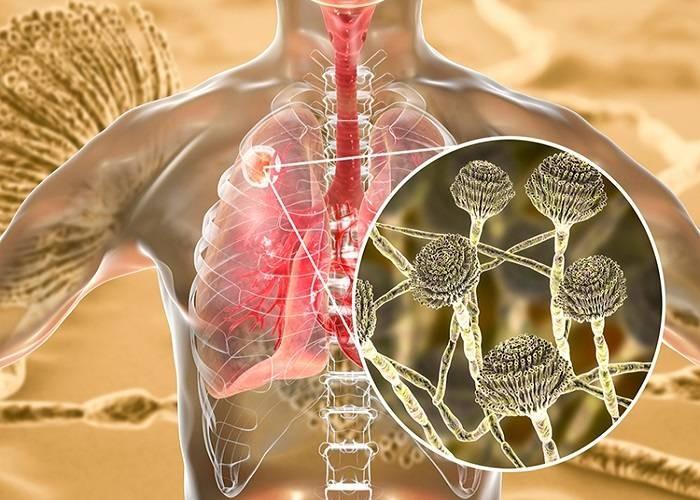 В Индии зафиксирован случай грибкового заболевания, получившего название «зелёная плесень»