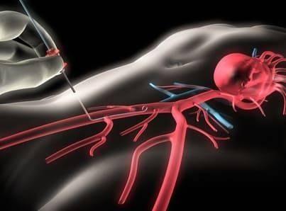 Коронарография: особенности и преимущества метода диагностики